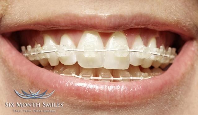Do White Braces Turn Yellow Birchgrove Dental Practice