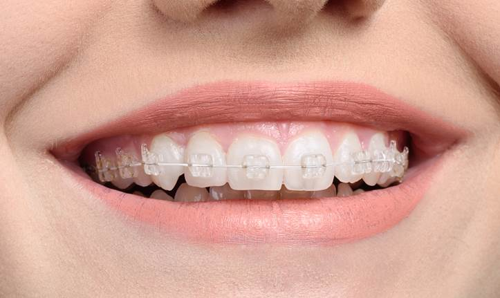 Kết quả hình ảnh cho Braces art the difference between porcelain teeth