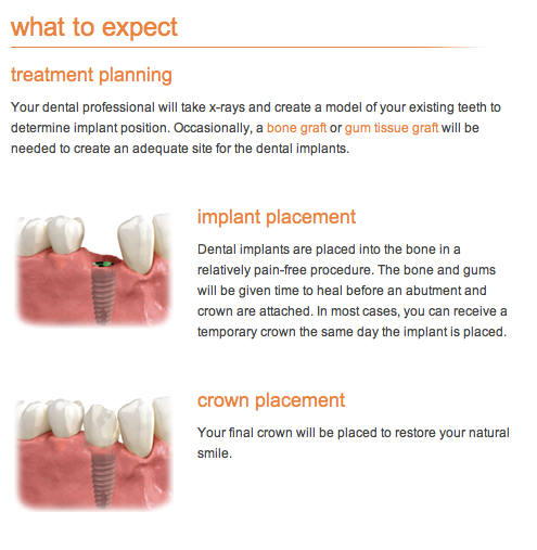 dental-implants-procedure-cardiff
