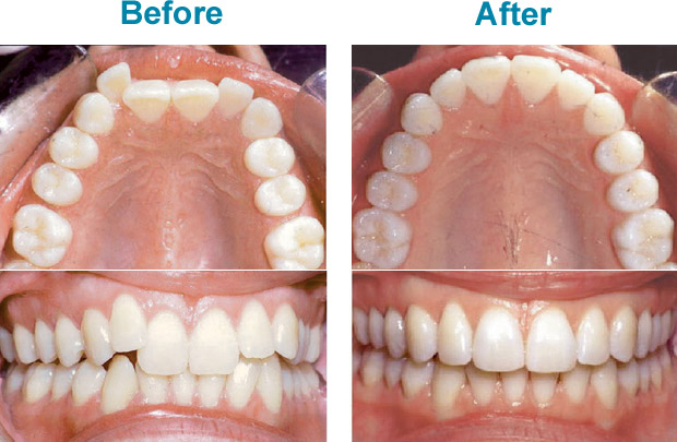 before and after invisalign braces