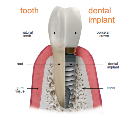 dental-implants-cardiff
