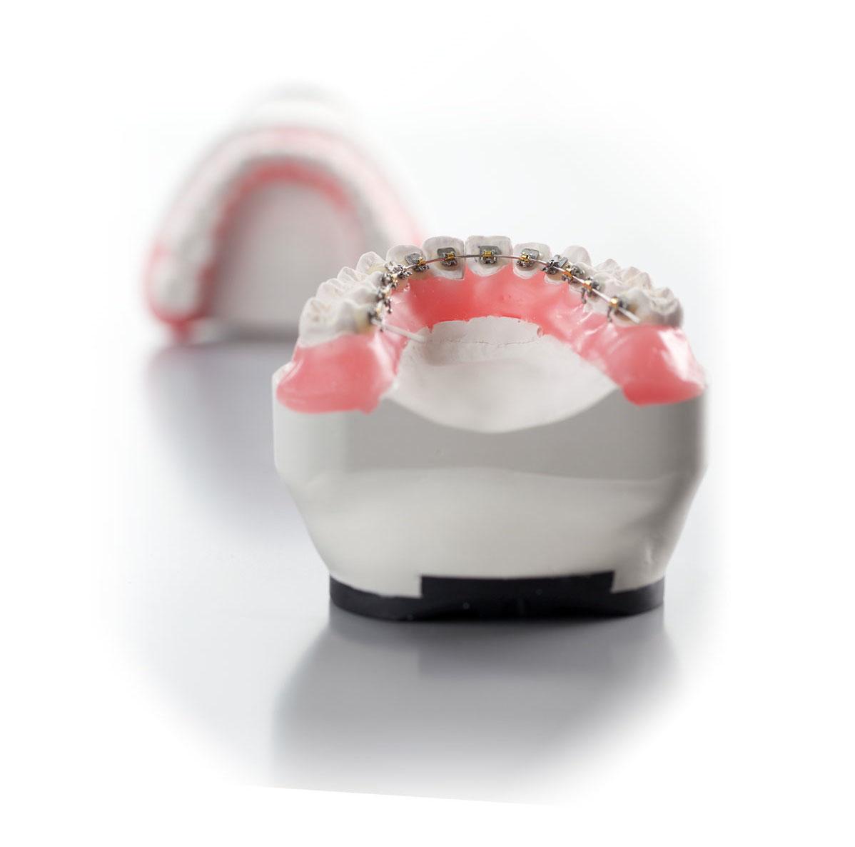 lingual-braces-cardiff