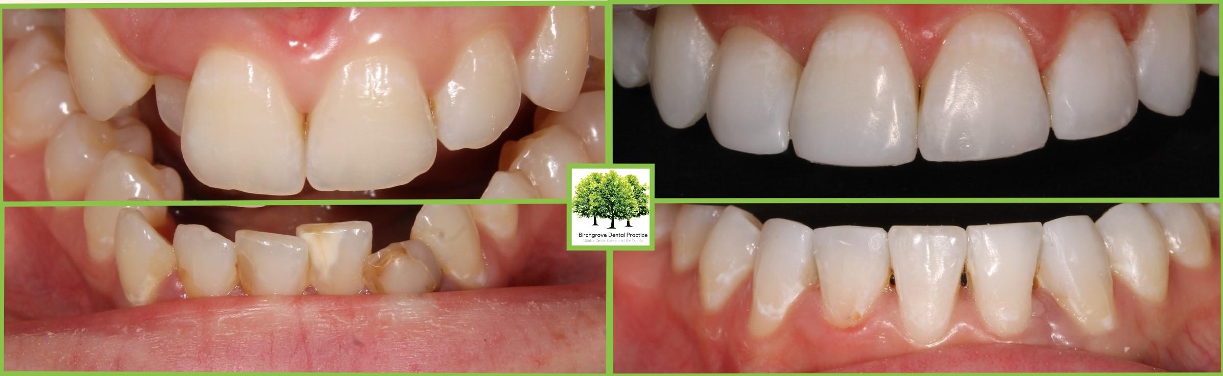 Cosmetic Bonding Cardiff - Composite Bonding | Birchgrove Dental